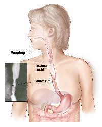 Barium swallow; shows barium liquid flowing through the esophagus and into the stomach.